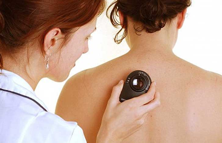 ¿Qué es la dermatoscopia digital?
