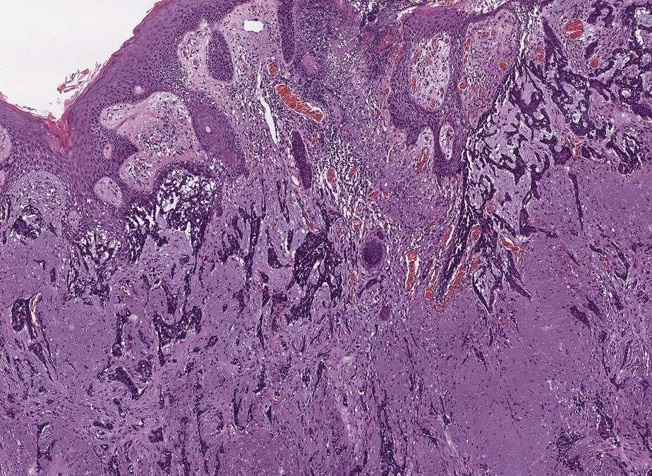 ¿Qué es el carcinoma basocelular y por qué debes conocerlo?